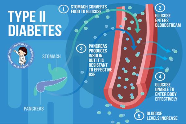 Type 2 Diabetes Symptoms, Treatment, Risk Factors, Complications